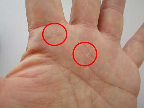 ばね指左 手術跡1.jpg