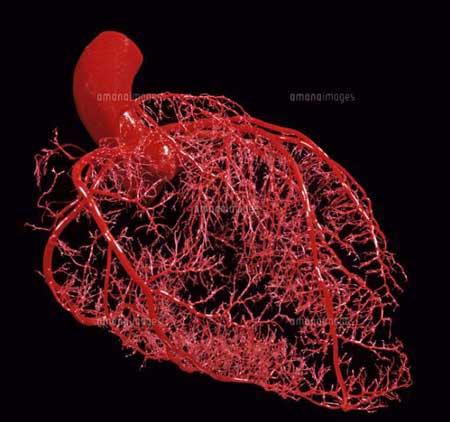 冠状動脈イメージS.jpg